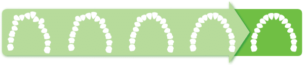 What is Clear Aligner Therapy