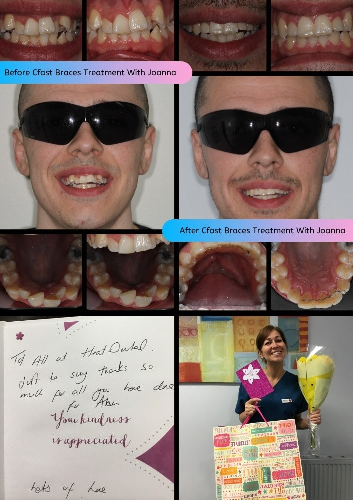 Before Cfast Braces Treatment With Joanna-min